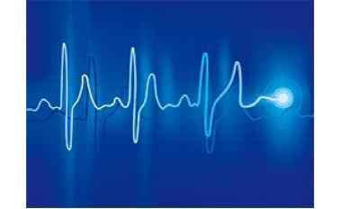 谐波对电缆的危害