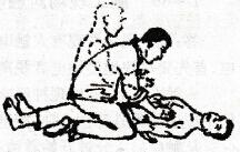 胸外挤压人工呼吸法